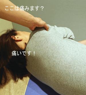肩の圧痛確認