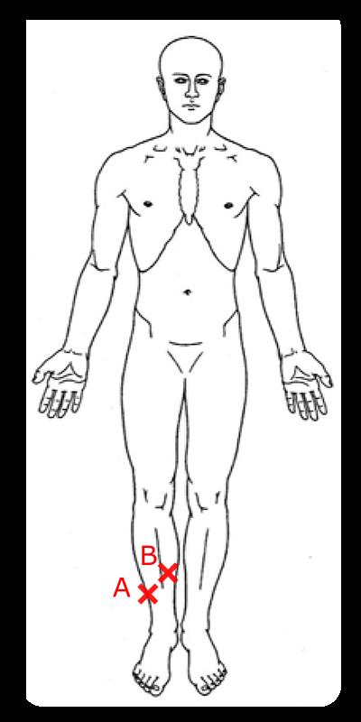 足首の圧痛点