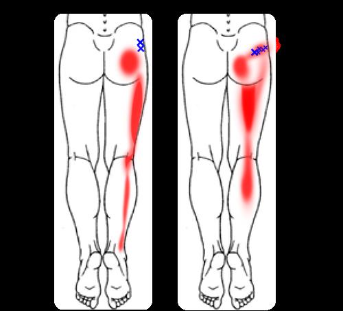 関連痛パターン例