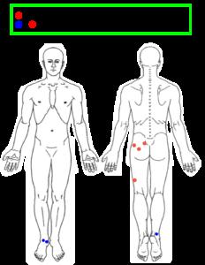 坐骨神経痛Sさんの施術箇所