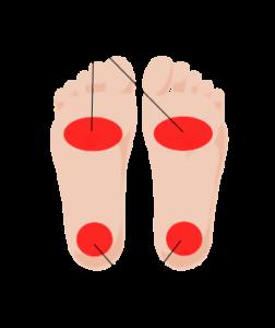 足裏のしびれ改善事例